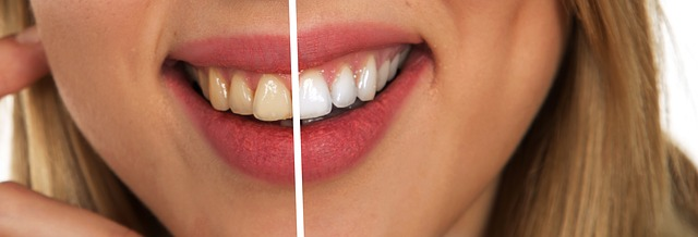 Professional teeth whitening Leesburg VA