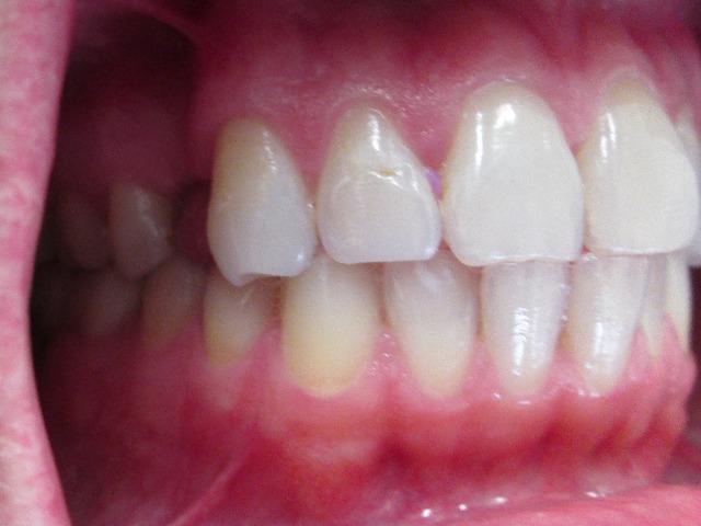dental implants in leesburg va