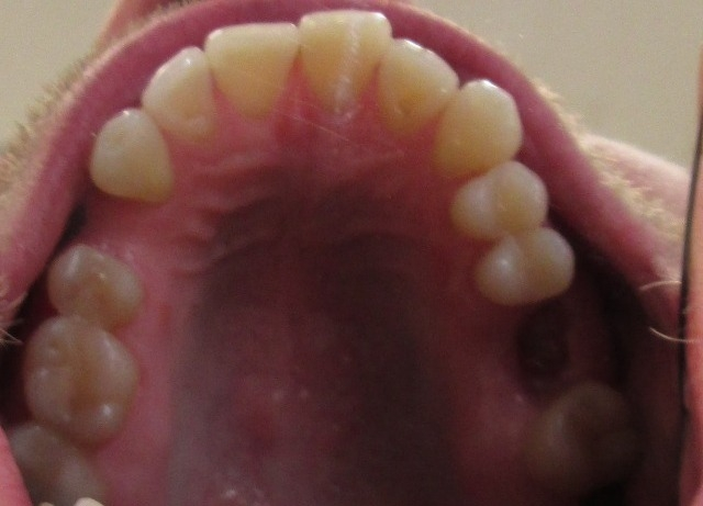 Invisalign and dental implants case study